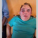 Candidato a prefeito de Santa Terezinha-PB, é brutalmente agredido por bandidos neste domingo